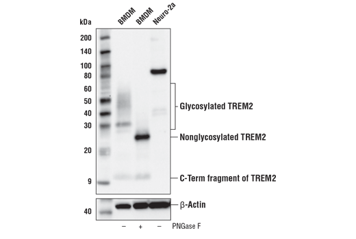 Western Blotting Image 1: TREM2 (E7P8J) Rabbit mAb (Carboxy-terminal Antigen, Mouse Specific)