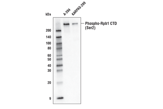 Western blot analysis of extracts from A-204 and KARPAS-299 cells using Phospho-Rpb1 CTD (Ser2) (E1Z3G) Rabbit mAb (Biotinylated). KARPAS cell line source: Dr. Abraham Karpas at the University of Cambridge.