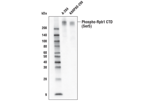 Western blot analysis of extracts from A-204 and KARPAS-299 cells using Phospho-Rpb1 CTD (Ser5) (D9N5I) Rabbit mAb (Biotinylated). KARPAS cell line source: Dr. Abraham Karpas at the University of Cambridge.