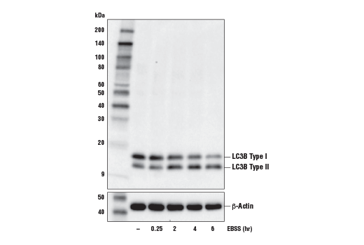 Western blot analysis of extracts from A549 cells, untreated (-) or starved with Earle's Balanced Salt Solution (EBSS) (indicated times) using LC3B (E5Q2K) Mouse mAb (upper) or β-Actin (D6A8) Rabbit mAb (lower).