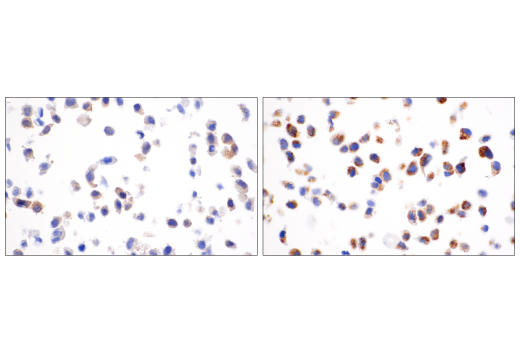 Image 51: Human Reactive Cell Death and Autophagy Antibody Sampler Kit