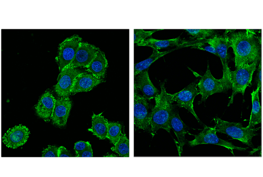 Confocal immunofluorescent analysis of human MDA-MB-468 cells (left) and mouse embryonic fibroblast (MEF) cells (right) using Merlin/Ezrin/Radixin/Moesin (D1P8I) Rabbit mAb (green) and DAPI #4083 (blue).