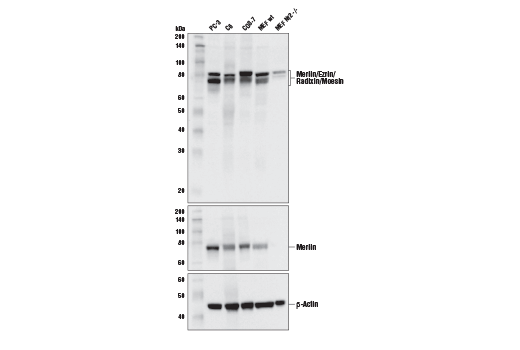 Western blot analysis of extracts from various cell lines using Merlin/Ezrin/Radixin/Moesin (D1P8I) Rabbit mAb (upper), Merlin (D3S3W) Rabbit mAb #12888 (middle), and β-Actin (D6A8) Rabbit mAb #8457 (lower). MEF wt and MEF Nf2 (-/-) cells were kindly provided by Dr. Andrea McClatchey and Dr. Andrew Gladden, MGH Cancer Center and Harvard Medical School, Charlestown MA.