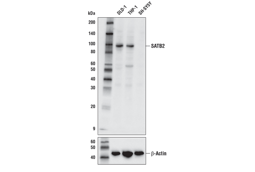 Western blot analysis of extracts from DLD-1, THP-1, and SH-SY5Y cells using SATB2 (E4N4A) Rabbit mAb (upper) and β-actin (D6A8) Rabbit mAb #8457 (lower).