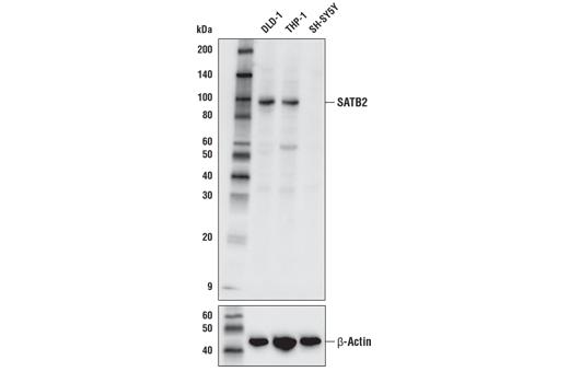 Monoclonal Antibody - SATB2 (E4N4A) Rabbit mAb - Immunoprecipitation, Western Blotting, UniProt ID Q9UPW6, Entrez ID 23314 #38192 - #38192