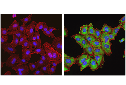 Confocal immunofluorescent analysis of HeLa cells, serum-starved overnight and then treated with Rapamycin #9904 (100 nM, 2 hr; left) or FBS (20%, 30 min; right), using Phospho-S6 Ribosomal Protein (Ser235/236) (E2R1O) Mouse mAb (green). Actin filaments were labeled with DyLight™ 650 Phalloidin #12956 (red). Blue = DAPI #4083 (fluorescent DNA dye).