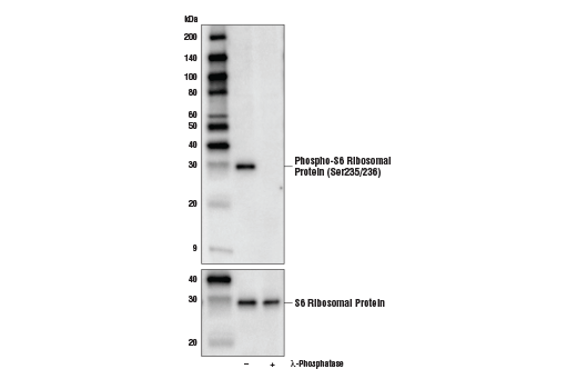 Western blot analysis of extracts from SK-MEL-28 cells, untreated (-) or treated with λ-phosphatase (+), using Phospho-S6 Ribosomal Protein (Ser235/236) (E2R1O) Mouse mAb (upper) and S6 Ribosomal Protein (54D2) Mouse mAb #2317 (lower).
