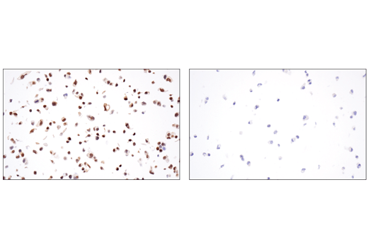 Immunohistochemical analysis of paraffin-embedded MCF7 cell pellet (left, positive) or HUVEC cell pellet (right, negative) using GATA-3 (E2N1Y) Mouse mAb.