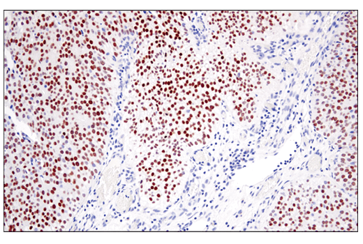 Monoclonal Antibody Immunohistochemistry Paraffin Type Iv Hypersensitivity