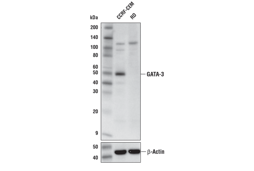 Western blot analysis of extracts from CCRF-CEM and RD cells using GATA-3 (E2N1Y) Mouse mAb (upper) and β-Actin (D6A8) Rabbit mAb #8457 (lower). As expected RD cells show low to negative expression of GATA-3.
