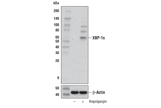 Western blot analysis of extracts from SK-N-AS cells, untreated (-) or treated with thapsigargin #12758 (1 μM, 8 hr; +), using XBP-1s (E8C2Z) Mouse mAb (upper) and β-Actin (D6A8) Rabbit mAb #8457 (lower).