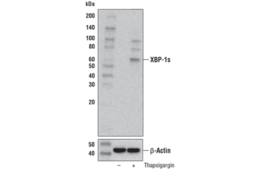 Western blot analysis of extracts from SK-N-AS cells, untreated (-) or treated with thapsigargin #12758 (1 μM, 8 hr; +), using XBP-1s (E7M5C) Mouse mAb (upper) and β-Actin (D6A8) Rabbit mAb #8457 (lower).