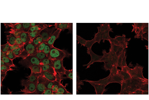 Confocal immunofluorescent analysis of NCCIT (left, high-expressing) and 293T (right, low-expressing) cells using DNMT3A (D2H4B) Rabbit mAb (green). Actin filaments were labeled with DyLight™ 554 Phalloidin #13054 (red). According to WB analysis, 293T cells preferentially express the larger DNMT3A isoform 1, while NCCIT cells also express high levels of two smaller isoforms, including isoform 2.