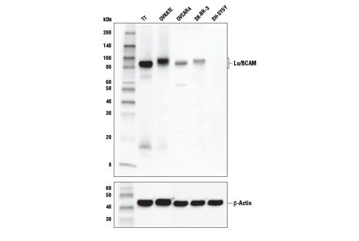 Polyclonal Antibody Western Blotting Laminin Receptor Activity