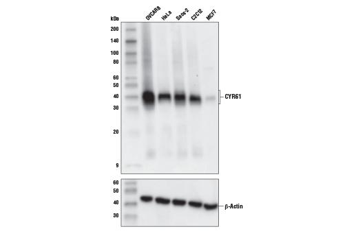 Monoclonal Antibody - CYR61 (E5W3H) Rabbit mAb - Western Blotting, UniProt ID O00622, Entrez ID 3491 #39382