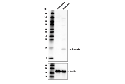 Western blot analysis extracts from mouse spleen and mouse brain using α-Synuclein (D37A6) XP<sup>®</sup> Rabbit mAb (Biotinylated) (top) and β-Actin (D6A8) Rabbit mAb #8457 (bottom).