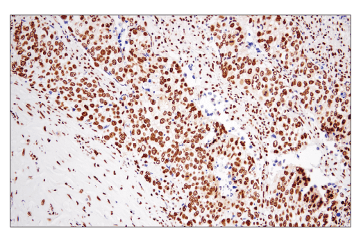 Monoclonal Antibody Immunohistochemistry Paraffin Cell Differentiation