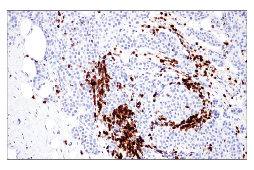 Immunohistochemical analysis of paraffin-embedded human ductal breast carcinoma using CD6 (E9Y7Y) Rabbit mAb.