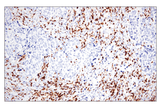 Immunohistochemical analysis of paraffin-embedded human squamous cell lung carcinoma using CD6 (E9Y7Y) Rabbit mAb.