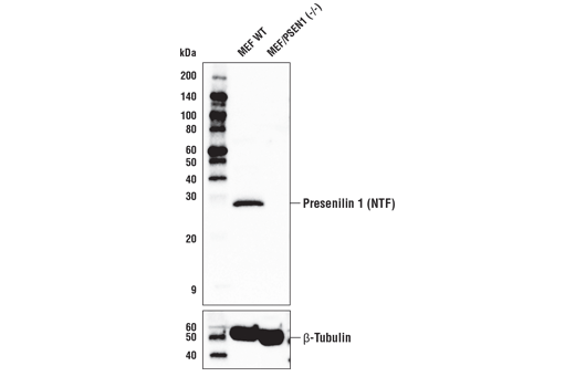 Western blot analysis using lysates from MEF WT and MEF/PSEN1 (-/-) cells. The MEF WT lysates are positive for the protein Presenilin 1. As expected, MEF/PSEN1 KO cells are negative for the Presenilin 1 protein (upper). β-Tubulin (D2N5G) Rabbit mAb #15115 was used as a control (lower). Wildtype MEF and Presenilin 1 (-/-) MEF cells were kindly provided by Dr. Bart De Strooper, K.U. Leuven, Belgium.