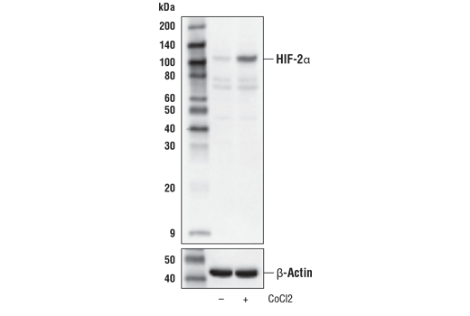 Western blot analysis of Hep G2 cells, untreated (-) or treated with cobalt chloride (CoCl2, 100 μM, 4 hr, +) using HIF-2α (D6T8V) Rabbit mAb (upper) or β-Actin (D6A8) Rabbit mAb #8457 (lower).
