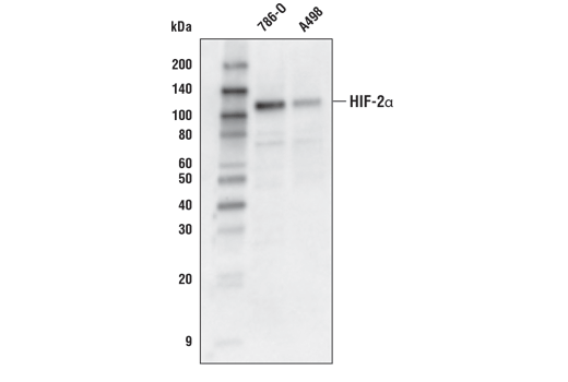 Western blot analysis of extracts from 786-O and A498 cells using HIF-2α (D6T8V) Rabbit mAb.