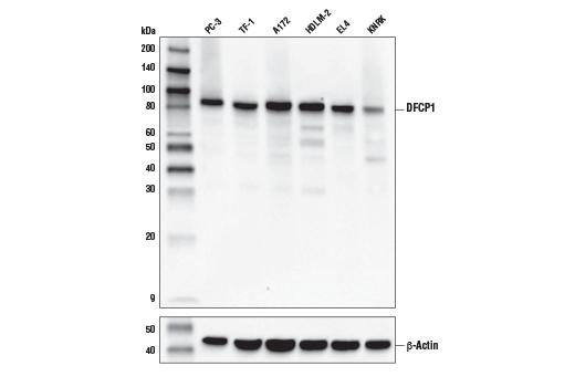Monoclonal Antibody - DFCP1 (E9R6P) Rabbit mAb - Western Blotting, UniProt ID Q9HBF4, Entrez ID 53349 #85156, Zfyve1