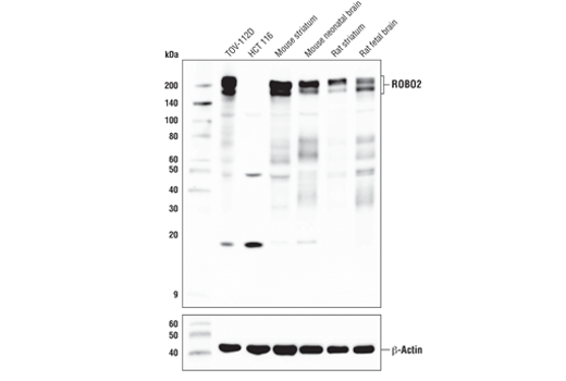 Western blot analysis of extracts from various cell lines and tissues using ROBO2 (E4M6D) Rabbit mAb (upper) and β-Actin (D6A8) Rabbit mAb #8457 (lower).