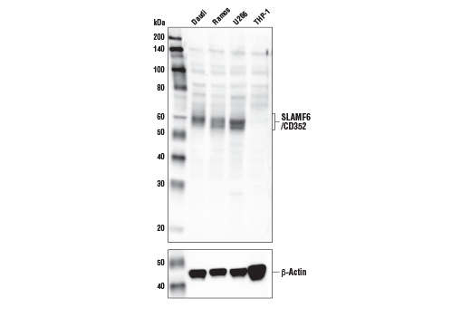 Western blot analysis of extracts from various cell lines using SLAMF6/CD352 Antibody (upper) and β-Actin (D6A8) Rabbit mAb #8457 (lower). As expected, SLAMF6/CD352 protein is not expressed in THP-1 cells.