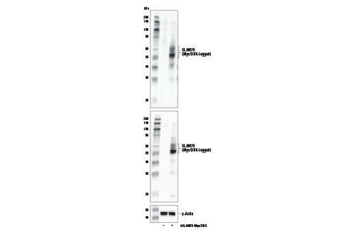 Western blot analysis of extracts from 293T cells, mock transfected (-) or transfected with a construct expressing full-length Myc/DDK-tagged human SLAMF6 protein (hSLAMF6-Myc/DDK; +), using SLAMF6/CD352 Antibody (upper), DYKDDDDK Tag Antibody #2368 (middle), and β-Actin (D6A8) Rabbit mAb #8457 (lower).
