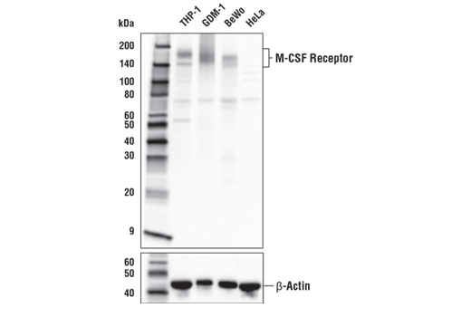 Western blot analysis of extracts from various human cells using M-CSF Receptor (E4T8Z) Rabbit mAb (upper) and β-Actin (D6A8) Rabbit mAb #8457 (lower).