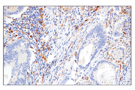 Immunohistochemical analysis of paraffin-embedded human colon adenocarcinoma using M-CSF Receptor (E4T8Z) Rabbit mAb performed on the Leica® BOND™ Rx.