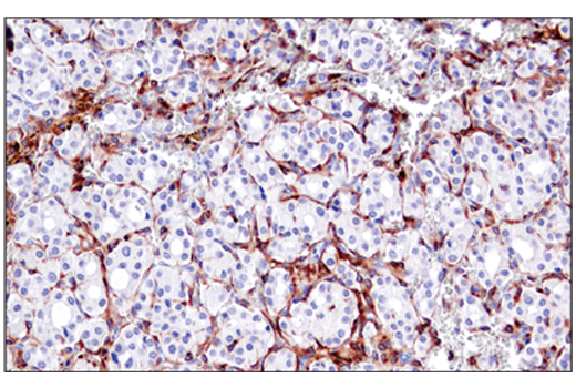 Immunohistochemical analysis of paraffin-embedded human ductal breast carcinoma using M-CSF Receptor (E4T8Z) Rabbit mAb.