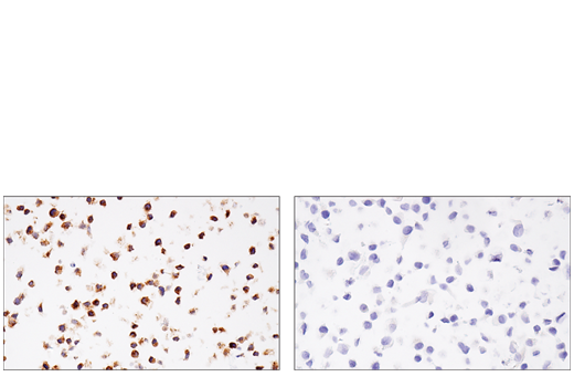 Immunohistochemical analysis of paraffin-embedded GDM-1 cell pellet (left, positive) or HeLa cell pellet (right, negative) using M-CSF Receptor (E4T8Z) Rabbit mAb.