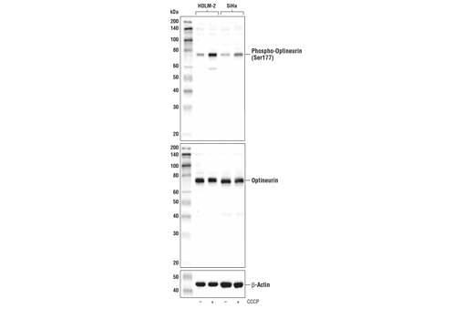 Western blot of extracts from HDLM-2 and SiHa cells, untreated (-) or treated with carbonyl cyanide 3-chlorophenylhydrazone (CCCP; 100 μM, 2 hr; +), using Phospho-Optineurin (Ser177) Antibody (upper), Optineurin (D2L8S) Rabbit mAb #58981 (middle), or β-Actin (D6A8) Rabbit mAb #8457 (lower).