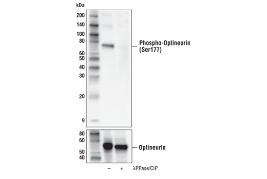 Western blot of extracts from HDLM-2 treated with carbonyl cyanide 3-chlorophenylhydrazone (CCCP; 100 μM, 2 hr) with lysates that were untreated (-) or treated with lambda-phosphatase and calf intestinal phosphatase (λPPase/CIP; +), using Phospho-Optineurin (Ser177) Antibody (upper) or Optineurin (D2L8S) Rabbit mAb #58981 (lower).