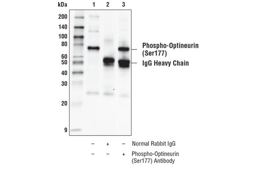 Polyclonal Antibody Immunoprecipitation Polyubiquitin Binding