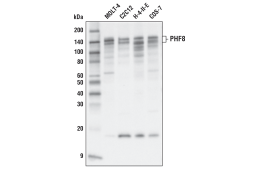 Western blot analysis of extracts from various cell lines using PHF8 (E6K3Y) Rabbit mAb.