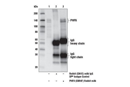 Immunoprecipitation of PHF8 from MOLT-4 cell extracts. Lane 1 is 10% input, lane 2 is Rabbit (DA1E) mAb IgG XP<sup>®</sup> Isotype Control #3900, and lane 3 is PHF8 (E9R4F) Rabbit mAb. Western blot analysis was performed using PHF8 (E9R4F) Rabbit mAb.