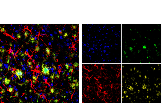 Immunofluorescence Image 1: β-Amyloid (1-43 Preferred) (E8C2D) Rabbit mAb