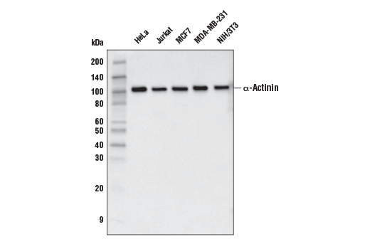 Western blot analyisis of extracts from various cell lines using α-Actinin (E7U1O) Mouse mAb.