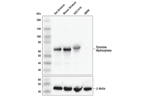 Western blot analysis of extracts from various tissues and cell lines using Tyrosine Hydroxylase (E2L6M) Rabbit mAb (upper) and β-Actin (D6A8) Rabbit mAb #8457 (lower).