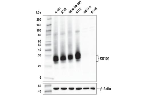 Monoclonal Antibody - CD151 (E4I9J) XP® Rabbit mAb, UniProt ID P48509, Entrez ID 977 #96282 - #96282