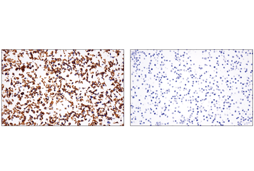 Immunohistochemical analysis of paraffin-embedded A-431 cell pellet (left, positive) or Daudi cell pellet (right, negative) using CD151 (E4I9J) XP<sup>®</sup> Rabbit mAb.