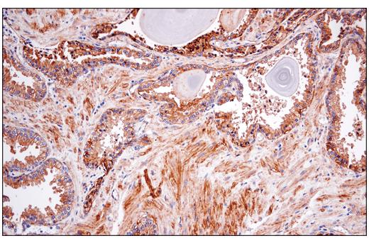 Immunohistochemical analysis of paraffin-embedded human prostate carcinoma using CD151 (E4I9J) XP<sup>®</sup> Rabbit mAb.
