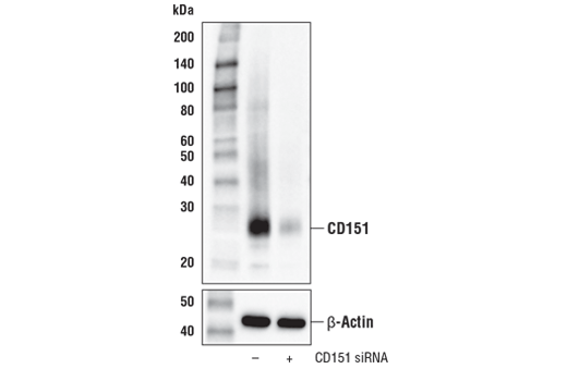 Western blot analysis of extracts from HeLa cells, mock transfected (-) or transfected with siRNA targeting human CD151 (+), using CD151 (E4I9J) XP<sup>®</sup> Rabbit mAb (upper) and β-Actin (D6A8) Rabbit mAb #8457 (lower).