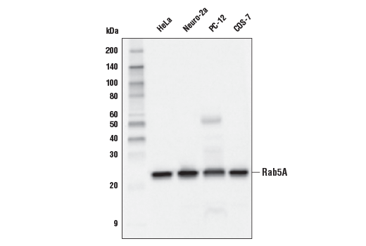 Western blot analysis of extracts from various cell lines using Rab5 (E6N8S) Mouse mAb.