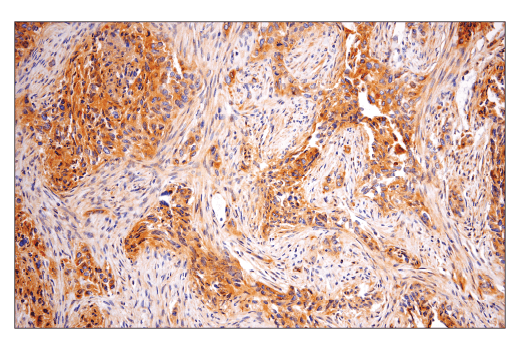 Immunohistochemical analysis of paraffin-embedded human serous papillary carcinoma of the ovary using Rab5 (E6N8S) Mouse mAb.