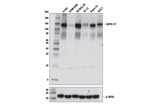 Monoclonal Antibody - Liprin β1 (D6O4Z) Rabbit mAb - Western Blotting, UniProt ID Q86W92, Entrez ID 8496 #67189, Adhesion