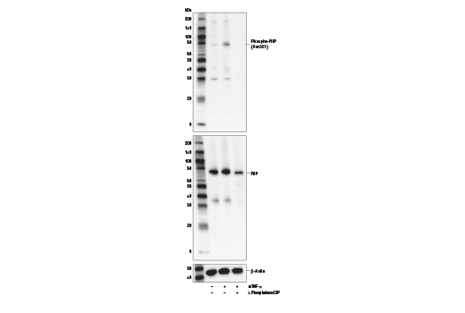 Western blot analysis of extracts from C2C12 cells, untreated (-) or treated with Mouse Tumor Necrosis Factor-α #5178 (mTNF-α; 20 ng/ml, 5 min; +) with or without Lambda Phosphatase (λPPase) and Calf Intestinal Phosphatase (CIP) (+) as indicated, using Phospho-RIP (Ser321) Antibody (upper), total RIP (D94C12) XP<sup>®</sup> Rabbit mAb #3493 (middle), or β-Actin (D6A8) Rabbit mAb #8457 (lower).